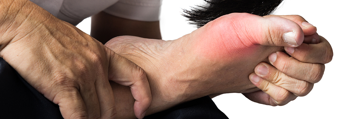 Gout Flare-Ups